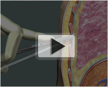 Proper Thoracotomy - MediVisuals Animation