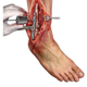 ankle-fusion-medical-exhibits