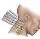cervical-head-neck-injections