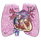 Pulmonary Embolism Medical Negligence Exhibits