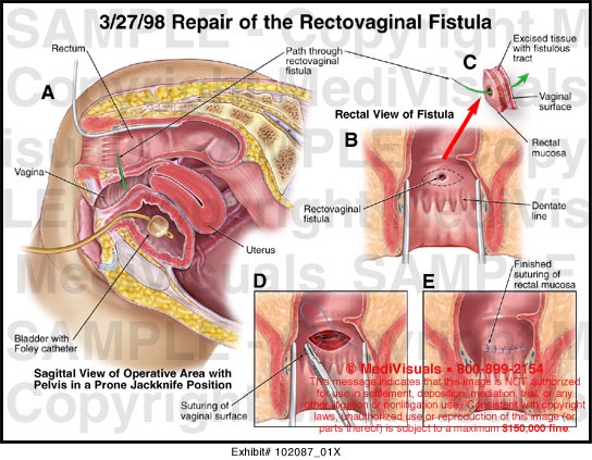 photos of rectal vaginal fistula