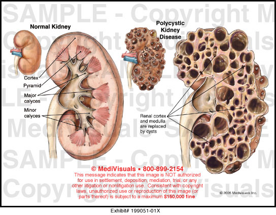 Medivisuals Polycystic Kidney Disease Medical Illustration