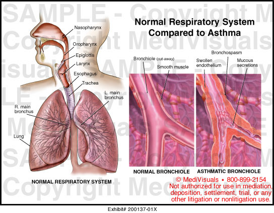 Essay on the effect of smoking in the human respiratory system