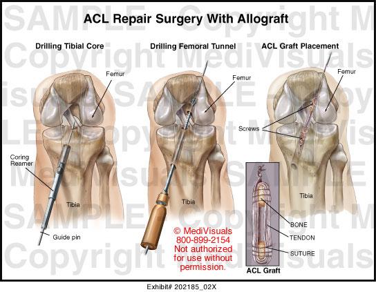 arthritis neck surgery