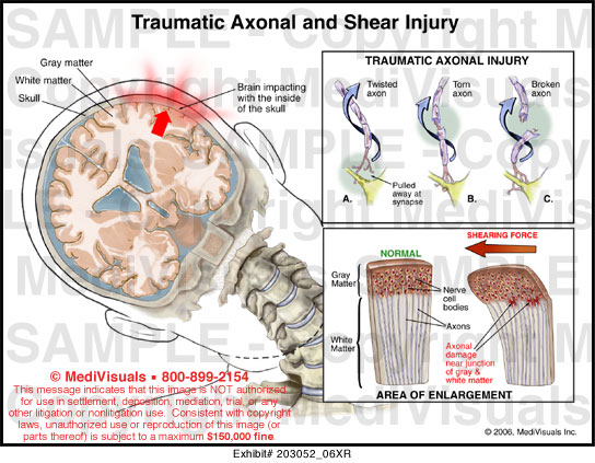 traumatic and non traumatic brain injuries essay All brain injuries are acquired, through traumatic or non-traumatic mechanisms traumatic brain injuries result from external causes and are divided into 2 categories: closed brain injuries are a result of a non-penetrating blow to the head.