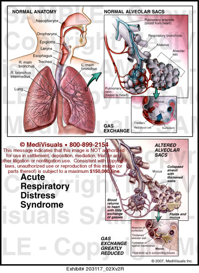 respiratory ards Since its first description, the acute respiratory distress syndrome (ards) has been acknowledged to be a major clinical problem in respiratory medicine from july 2015 to july 2016 almost 300 indexed articles were published on ards this review summarises only eight of them as an arbitrary overview.