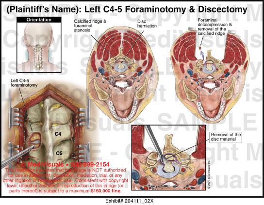 Left C4 5 Foraminotomy And Discectomy 20411102x