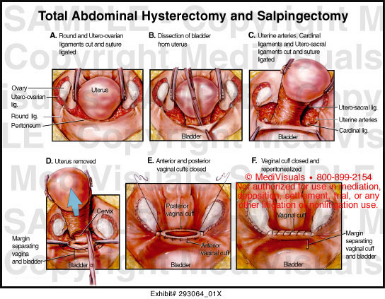 Total abdominal hysterectomy anatomy