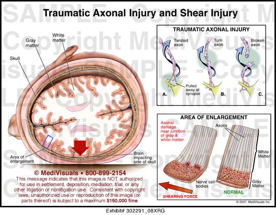Traumatic Axonal Injury and Shear Injury Medical Illustration