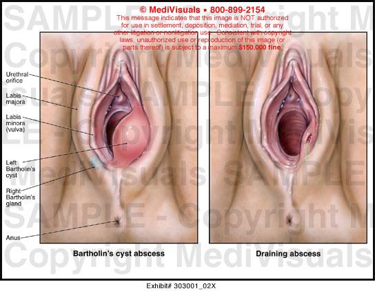 Lump in vaginal lip