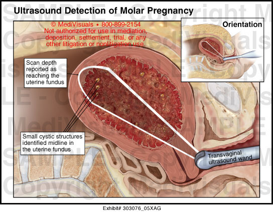 molar pregnancy an abnormal form of A molar pregnancy is caused by an abnormality during fertilization molar pregnancies are very rare, so it's not likely you'll experience one an error in conception can produce this abnormal (and rare) type of pregnancy pregnancy loss is always incredibly difficult, even if it happens very early on.