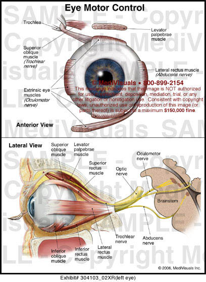 Eye motor control medical exhibit medivisuals for Loss of motor control