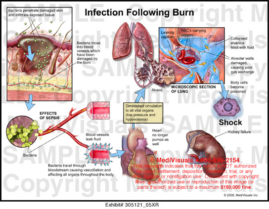 Infection Following Burn Medical Illustration Medivisuals