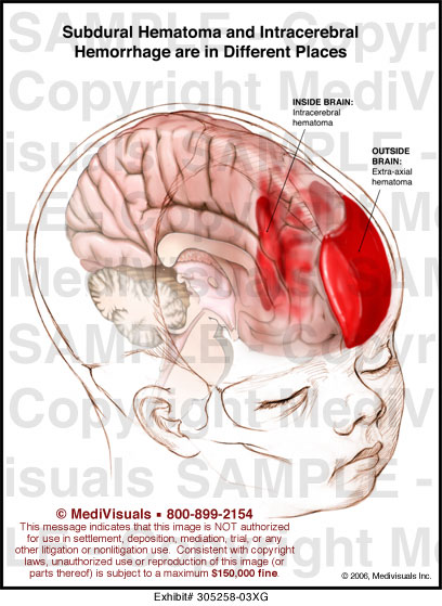 health guides disease intracerebral hemorrhage overview.