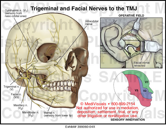 Trigeminal And Facial Nerves To The Tmj Medical Exhibit