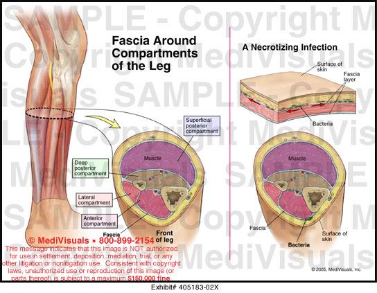 Immune System Anatomy Diagrams Back Pain Diagram Anatomy ...