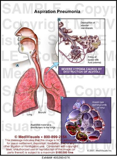 medivisuals aspiration pneumonia medical illustration