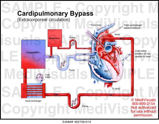 cardiopulmonary machine