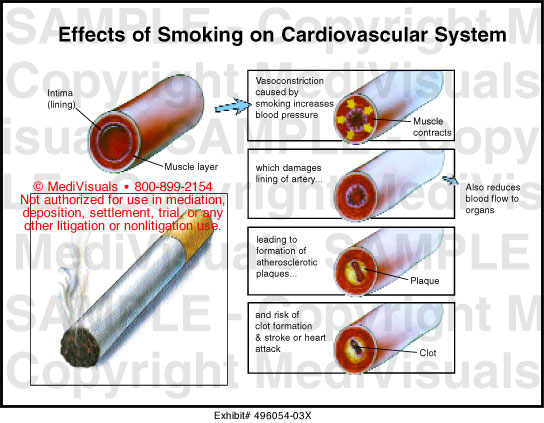 the effects of smoking on the Tobacco information and tips for quitting smoking.