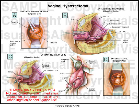 total abdominal hysterectomy steps pdf
