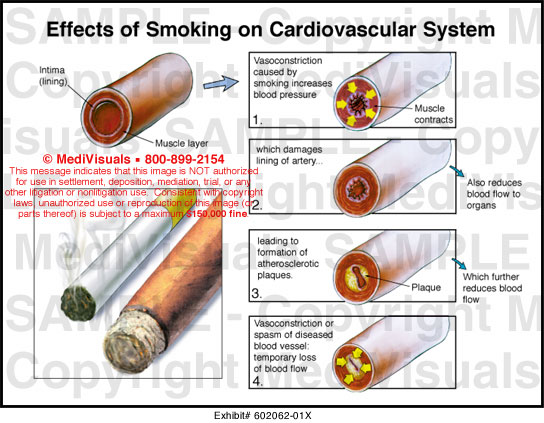 cardiovascular effects on smokers Effects of smoking on the circulatory and respiratory systems circulatory systems we are all aware at the face that smoking is horrible for your entire body.