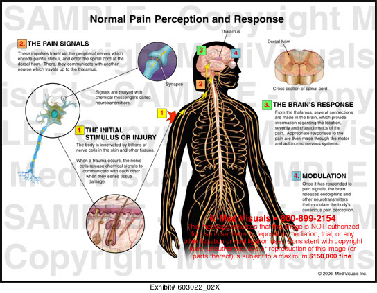 the impact of positive thinking on the perception of pain and pain related brain activity Neurocognitive aspects of pain perception and their impact on pain experience which pain-related brain areas are particularly sensitive to top-down influences.