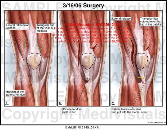Surgery Medivisuals Medical Illustration