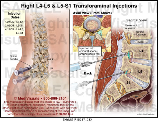 degenerative anterolisthesis of l4 on l5