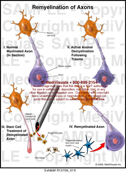 Remyelination Of Axons R15706 01x