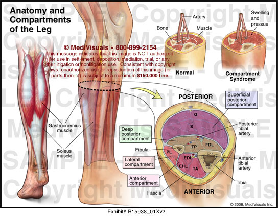 Compartment syndrome definition of Medical Dictionary 2868909 ...