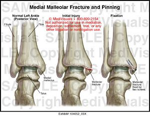 Medial Malleolar Fracture and Pinning Medical Exhibit