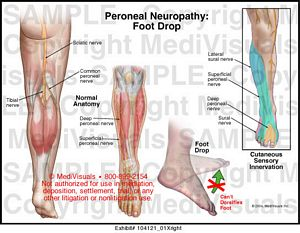 nerve damage in toes treatment