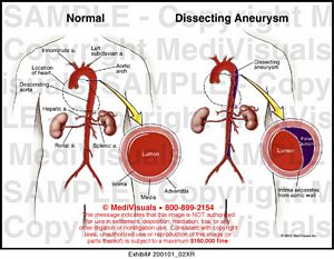 aortic aneurysm essay Aneurysms essays while in the my seventh grade pe class, i was pulled aside and told that my mother, frances, was in the hospital when i arrived at the hospital, i learned that my mother was diagnosed with five cerebral aneurysms that morning while she was at work, three of the aneurysms burst.