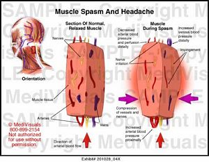Muscle Spasm and Headache Medical Illustration
