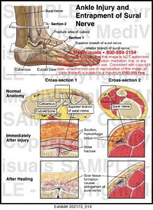 ankle-injury-entrapment-sural-nerve
