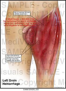 Left Groin Hemorrhage Medical Exhibit Medivisuals