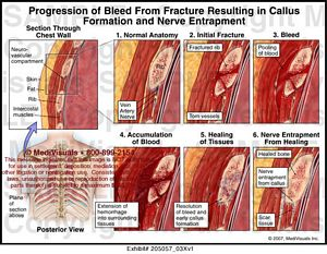 medivisuals progression of bleed from fracture resulting in callus, Muscles