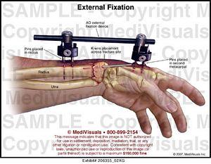 External Fixation Medical Exhibit Medivisuals