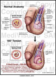 testicular torsion. testicular torsion - 206451_01x