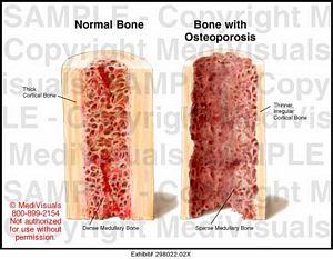 Normal Bone Vs Osteoporosis Medical Illustration