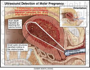 Ultrasound Detection of Molar Pregnancy Medical Exhibit ...