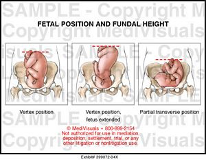Fetal Position and Fundal Height Medical Illustration ...