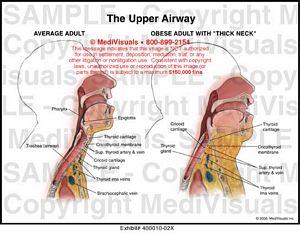 Anatomy of upper airway illustration