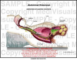 abdominal-distension