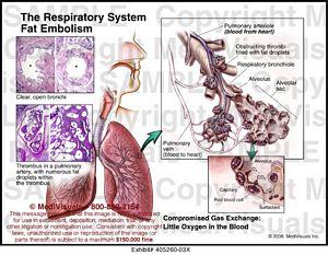 Medivisuals The Respiratory System Fat Embolism Medical Illustration