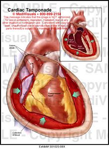 cardiac tamponade medical illustration medivisuals, Skeleton