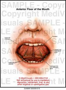 Medivisuals Anterior Floor of the Mouth Medical Illustration