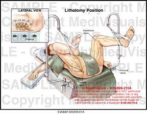 lithotomy