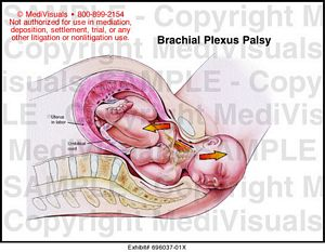 Brachial Plexus Injury During Delivery