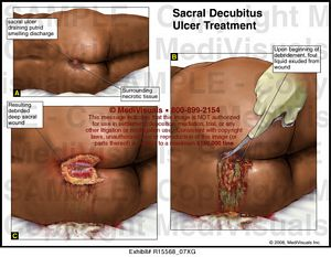 sacral decubitus ulcer treatment - r15568_07xg, Skeleton